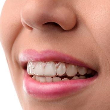 Invisalign on patient's teeth