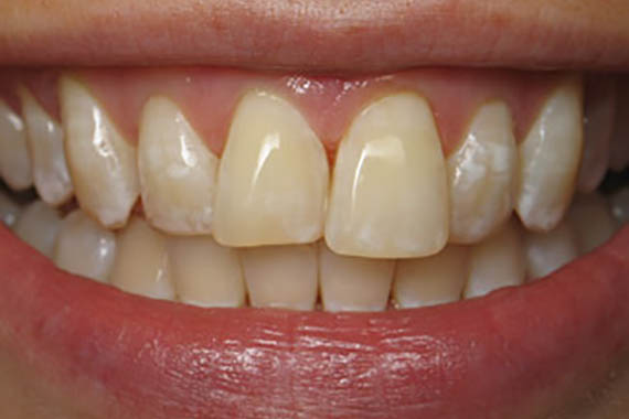 cosmetic bonding after