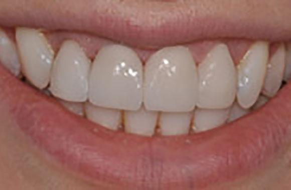 Powell Ohio Dental Clinic
