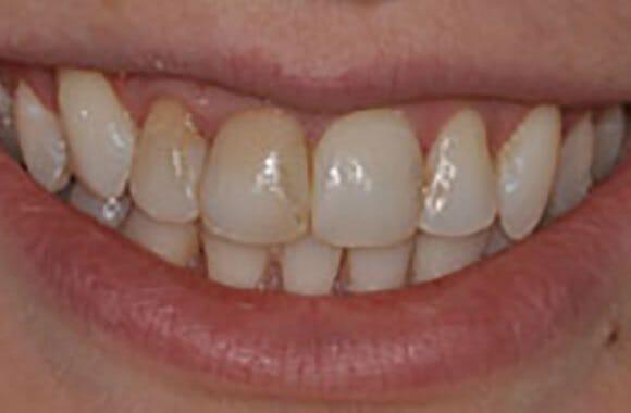 Hilliard Ohio Family Dentist